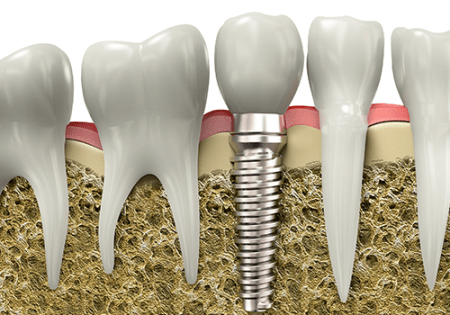 Ottawa Dentist, Dental Implants